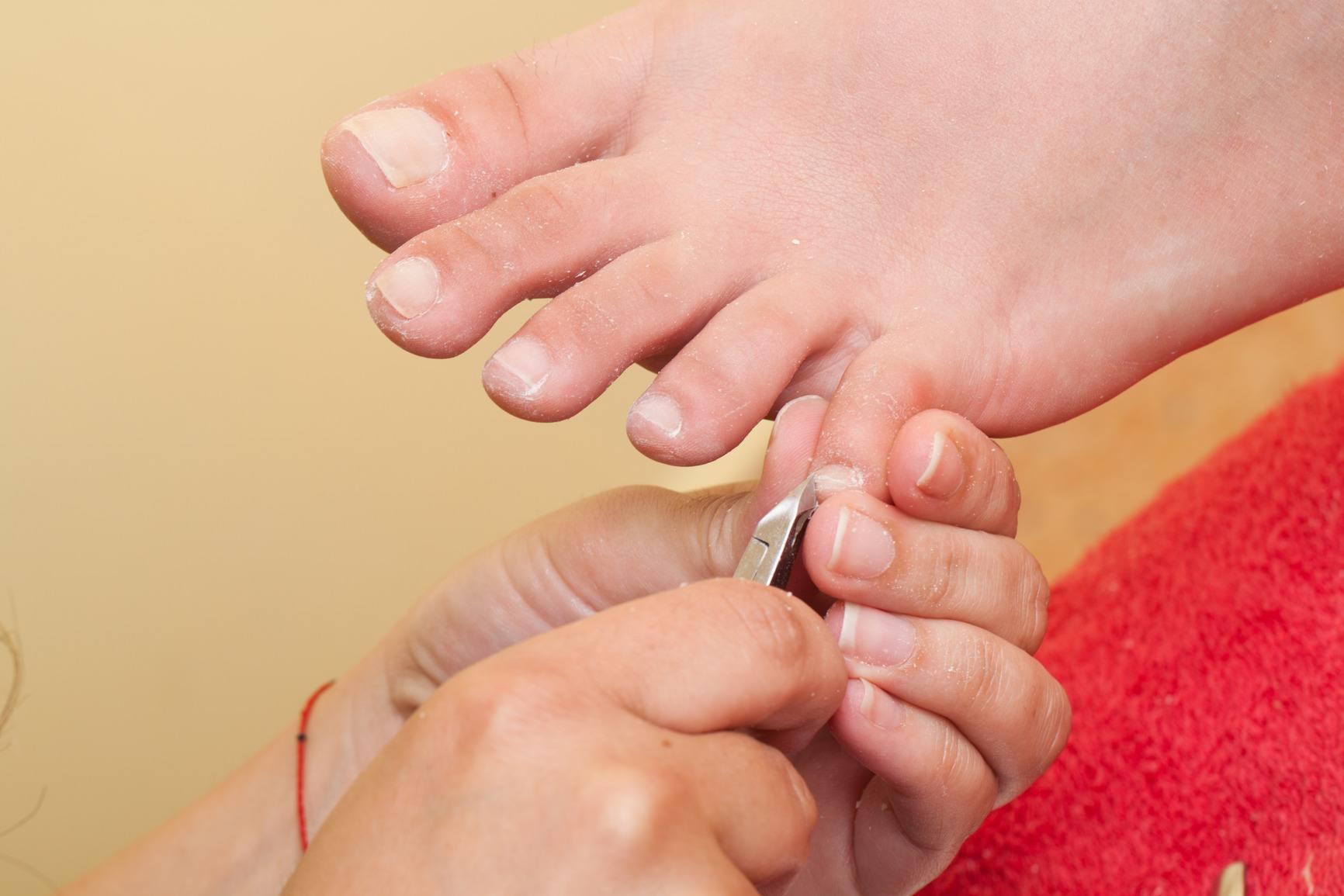 Groeien nagels 1
