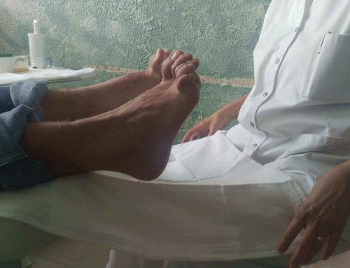 Zenuwaandoening aan de voeten