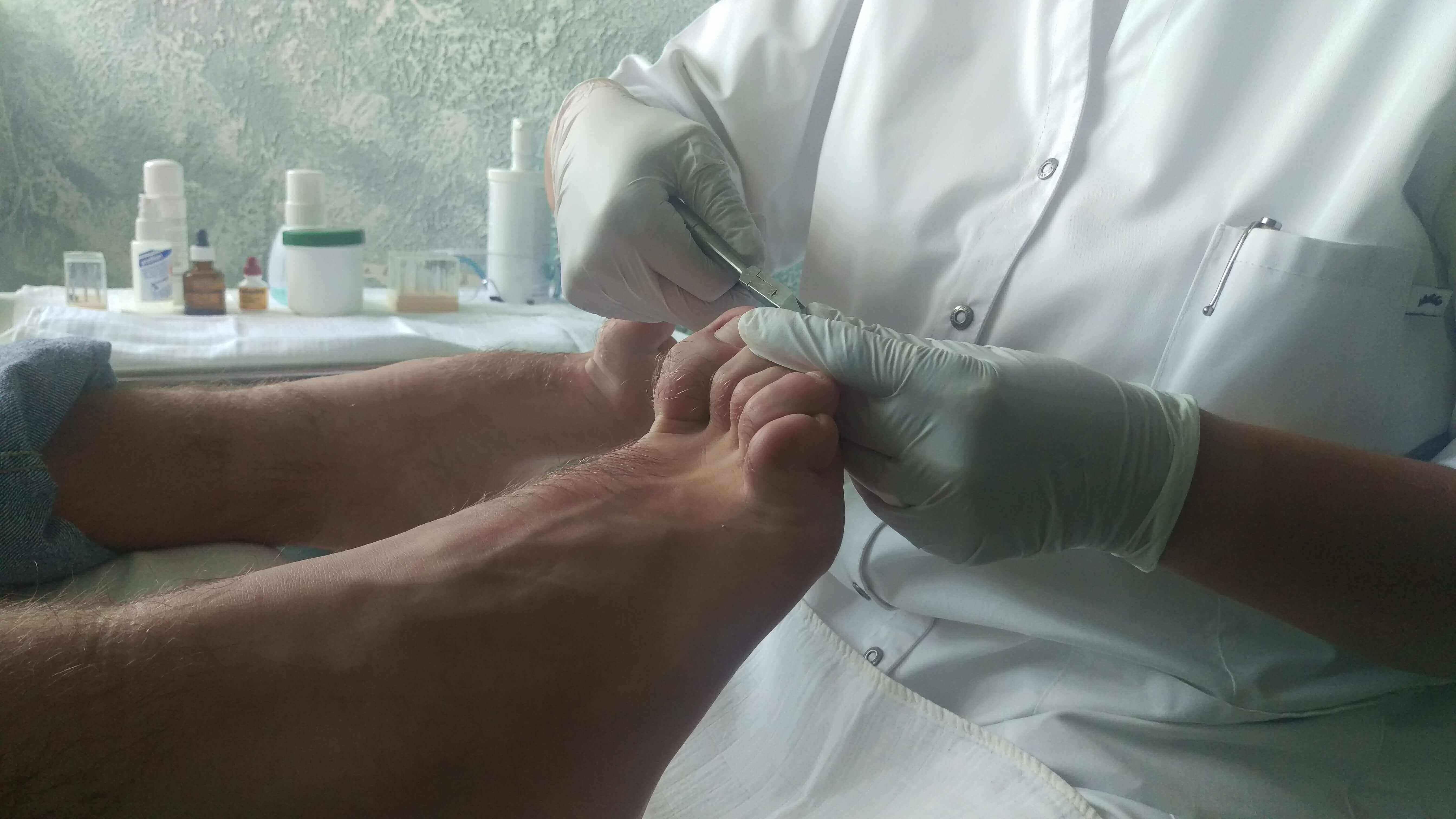 Cleo's Pedicure Heerhugowaard - voetbehandeling