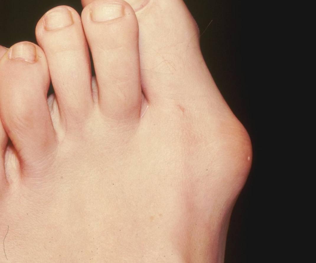 Hallux Valgus linker voet