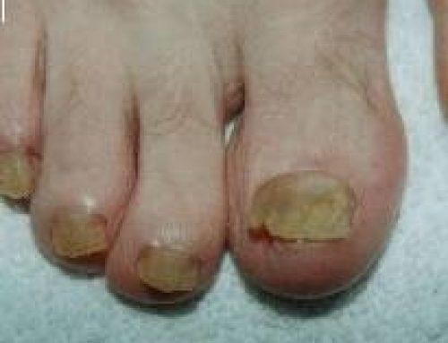 Verkalkte nagels