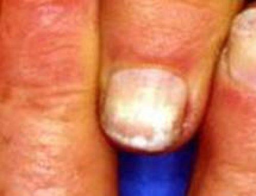 Witte vlekken op nagels