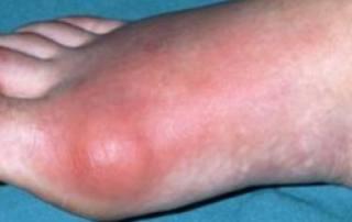 ontsteking in de voet